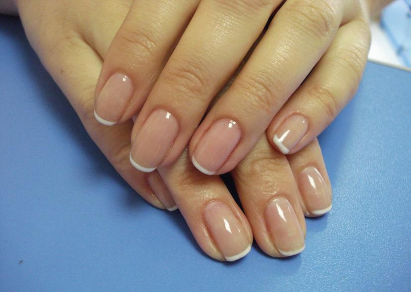 Псориаз ногтей пальцев рук: лечение