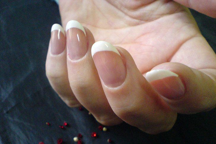 Псориаз ногтей. Причины