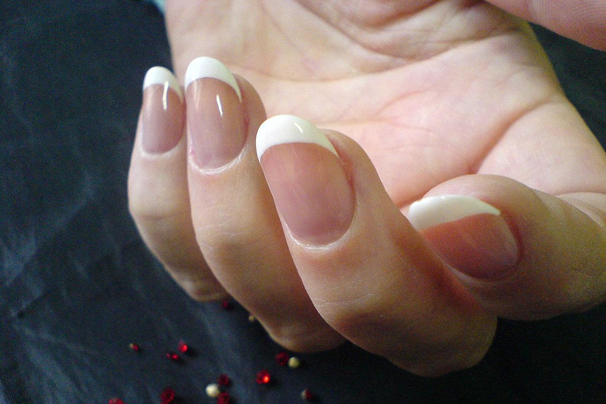 Отзывы о псориазе ногтей