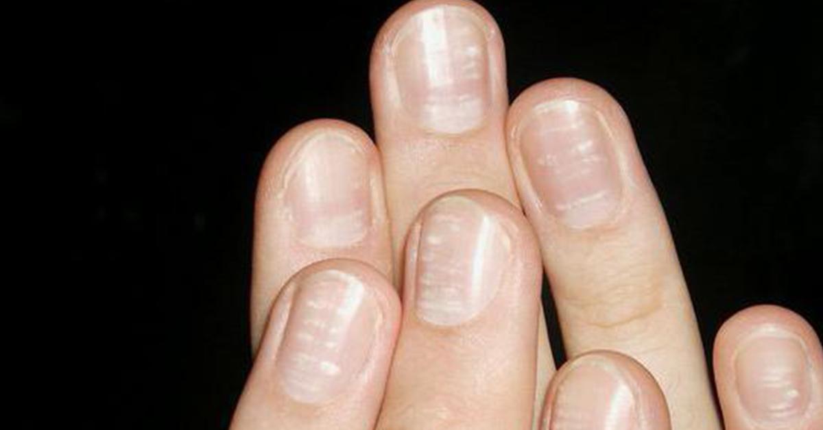 Белые точки на ногтях: лечение