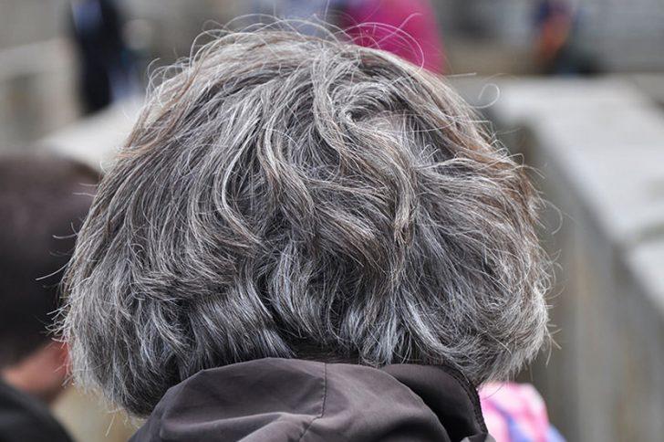 От чего на голове седеют волосы