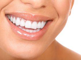 Какое отбеливание зубов самое эффективное?