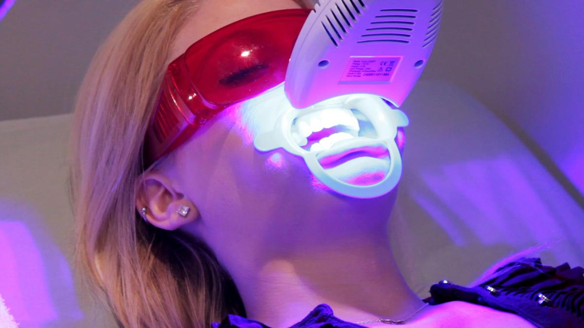Какое отбеливание зубов самое безопасное и эффективное?