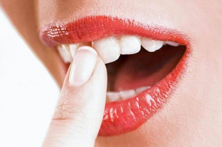 Потемнел передний зуб: методы отбеливания