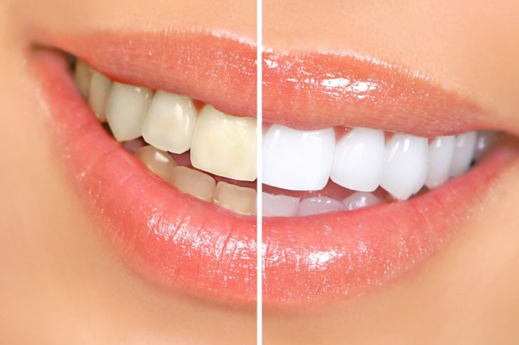 Пожелтели зубы: как отбелить в домашних условиях?