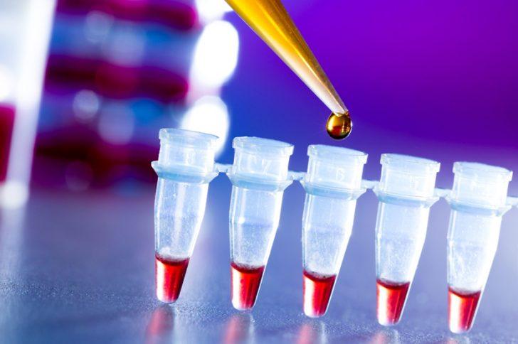 Что значит коэффициент атерогенности в анализе крови? Какая норма?