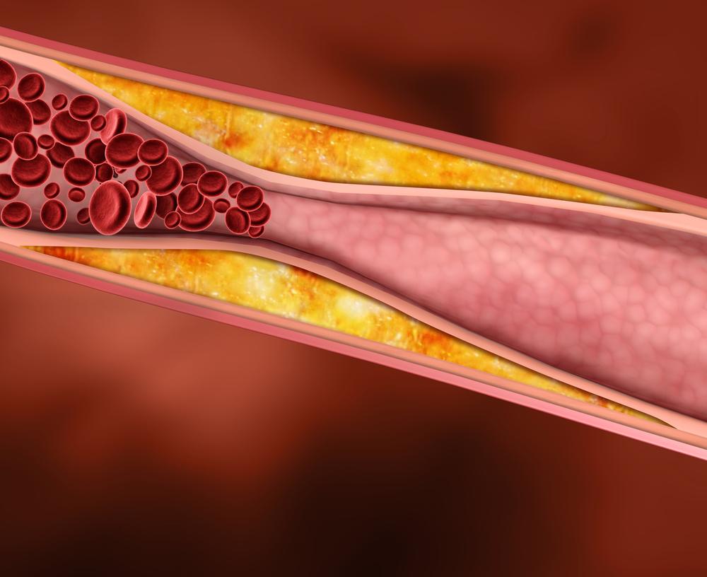 Опасность гиперхолетеремии