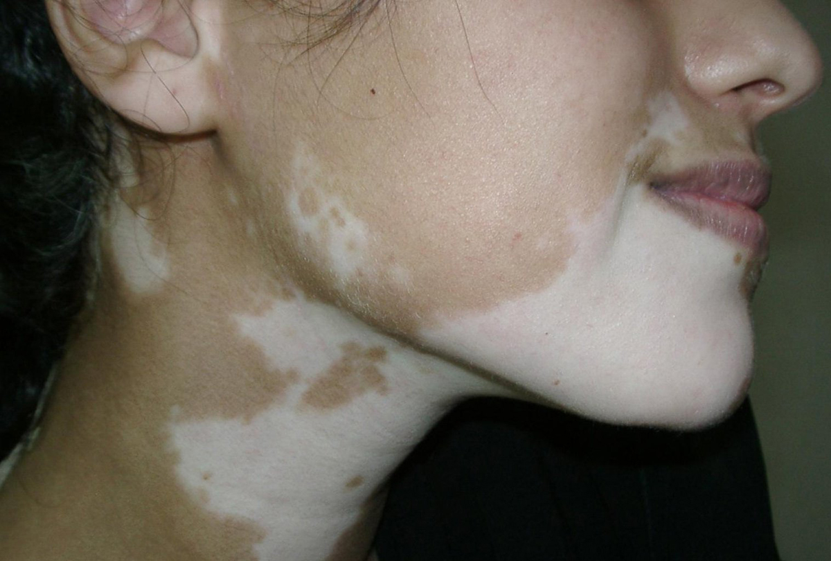 Белые пятна на коже: причины
