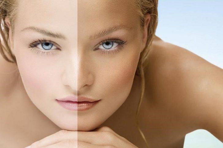 Как быстро отбелить кожу лица после загара?