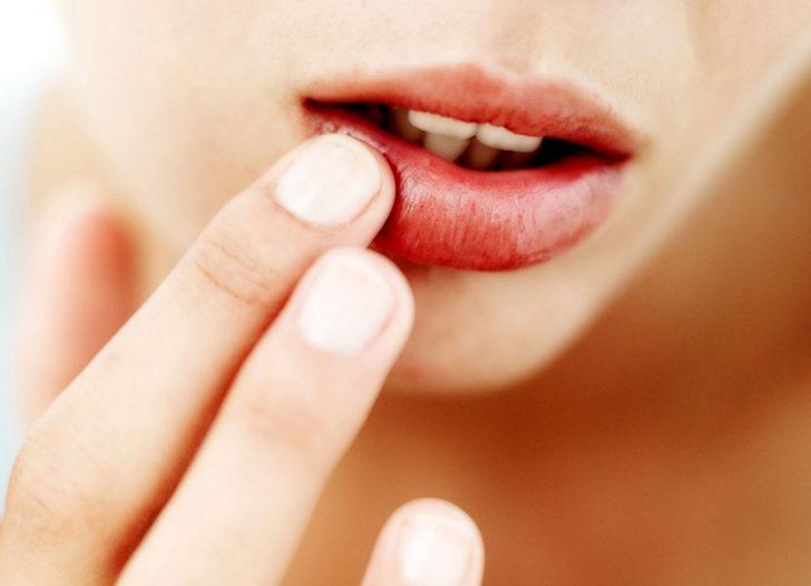 Чем опасно увеличение губ бутылкой?