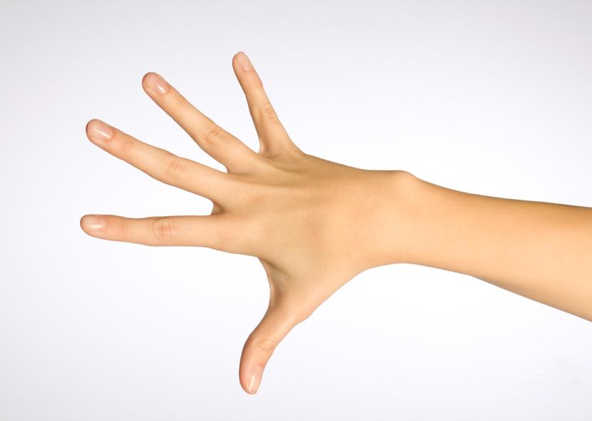 Как вывести бородавки на руках