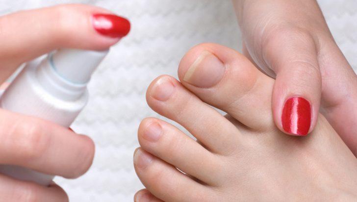 Устранение неприятного запаха ног, спровоцированного грибком