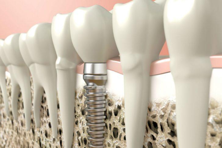 Имплантация зубов по современным и традиционным технологиям в центре Москвы