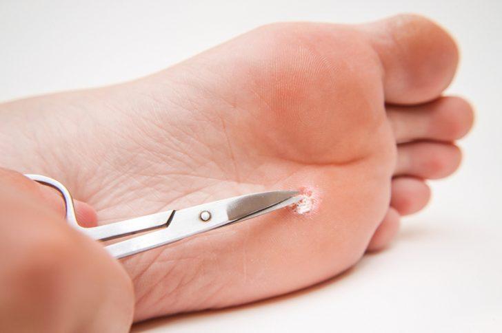 Бородавки на ногах: лечение бородавок и причины