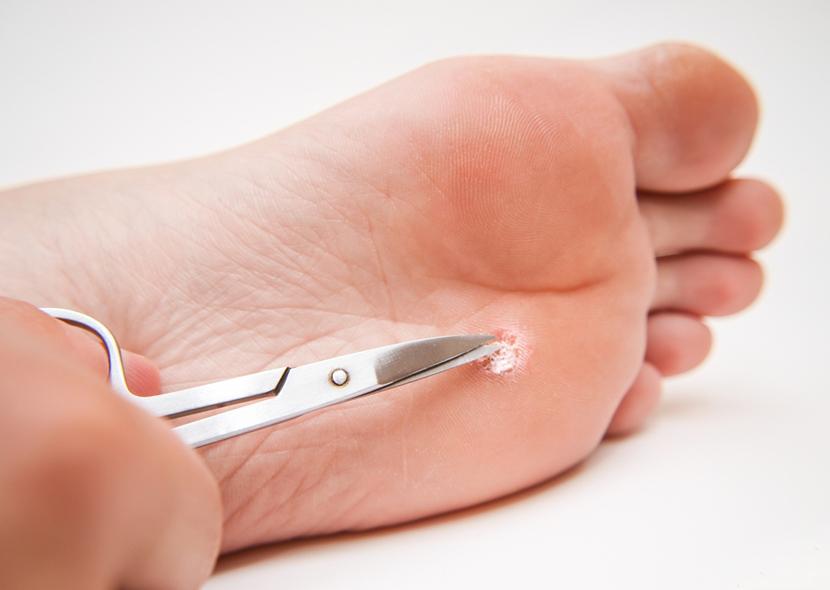 Как вывести бородавку на ноге в домашних условиях, методы, причины появления папиллом