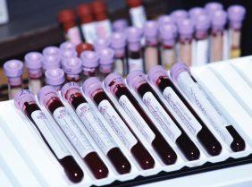 Повышенный холестерин в крови и печень: где связь?