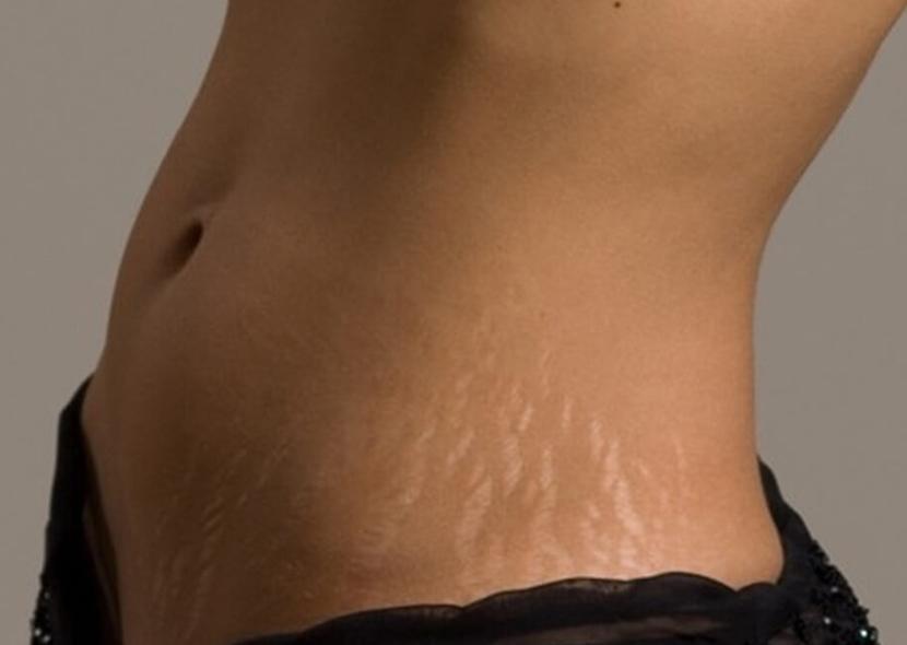 Как избавиться от белых растяжек на теле: попа, бедра, живот