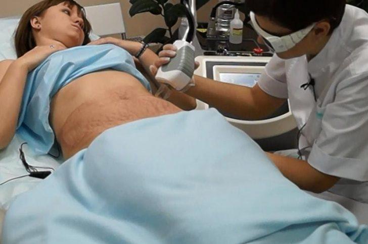 Лазерная шлифовка растяжек: преимущества и недостатки процедуры