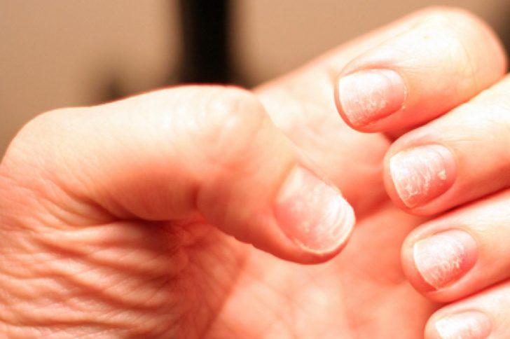 Псориаз поражение ногтей фото