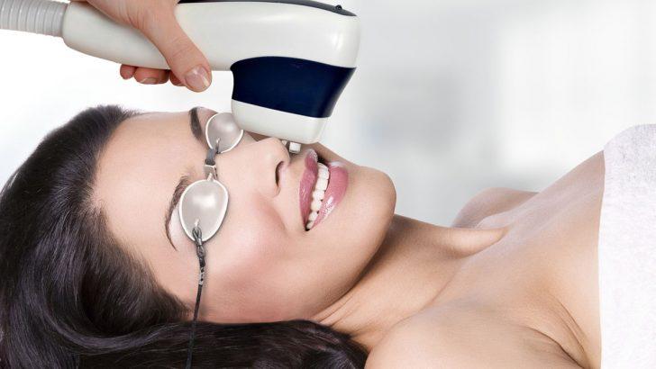 лазерная эпиляция волос на лице отзывы