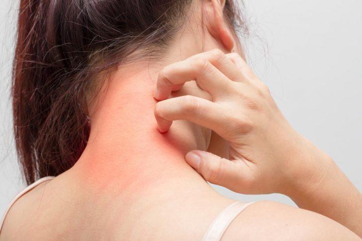 Симптомы псориаза кожи