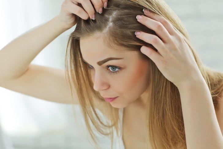 Основные причины гормонального выпадения волос