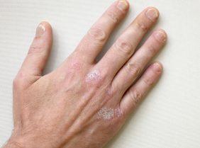 Псориаз на руках – этиология, симптомы, лечение
