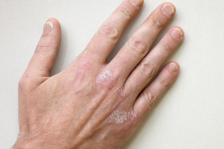Псориаз на руках лечение начальной стадии, симптомы псориаза на руках