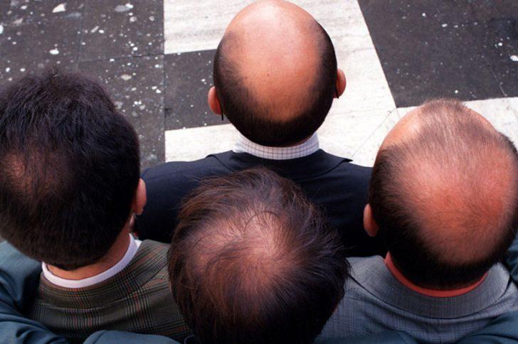 Облысение головы: причины и лечение