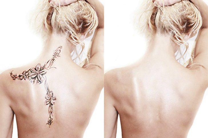 Хирургическое удаление татуировок