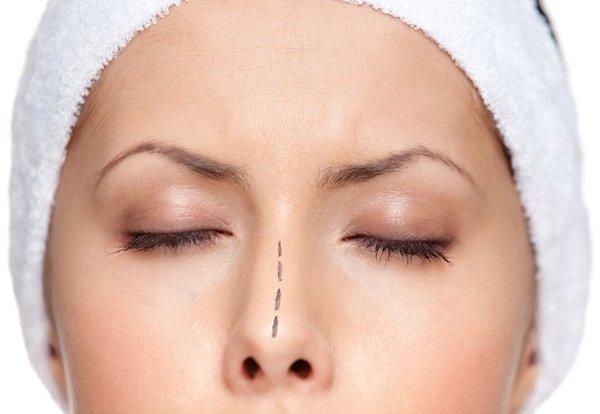Кратко и доступно о правке носовой перегородки: септопластике