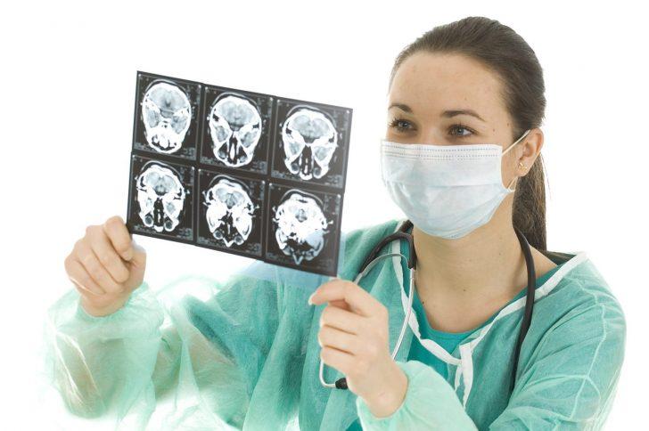 Профилактические действия по предотвращению инсульта