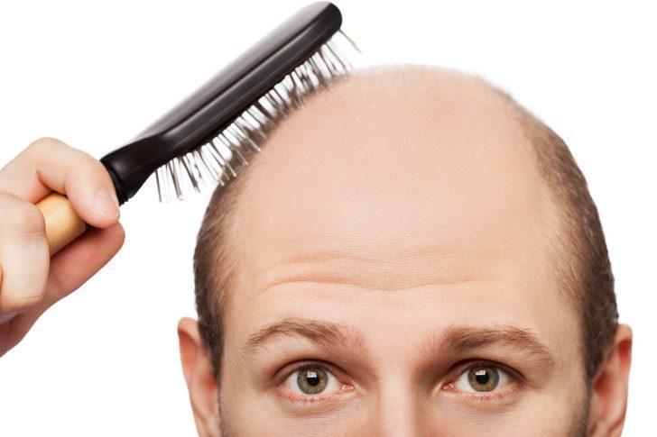 Уровень гормонов при выпадении волос