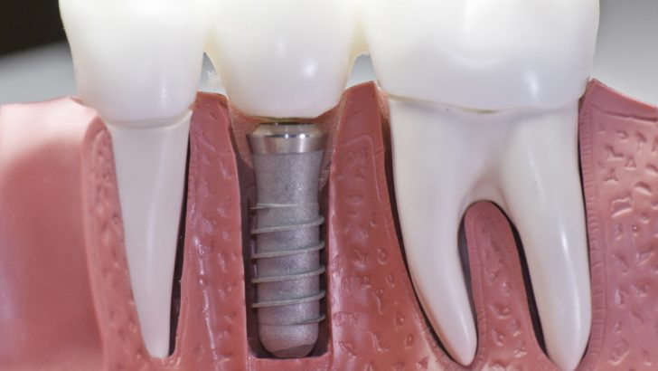 быстрая имплантация зубов