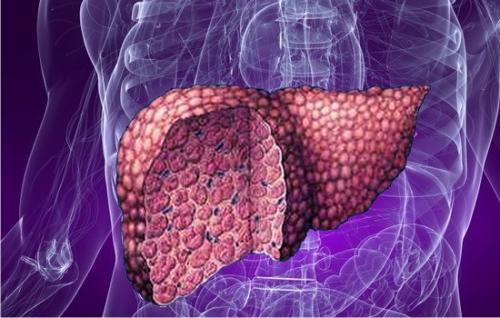 Причины и проявления ожирения печени