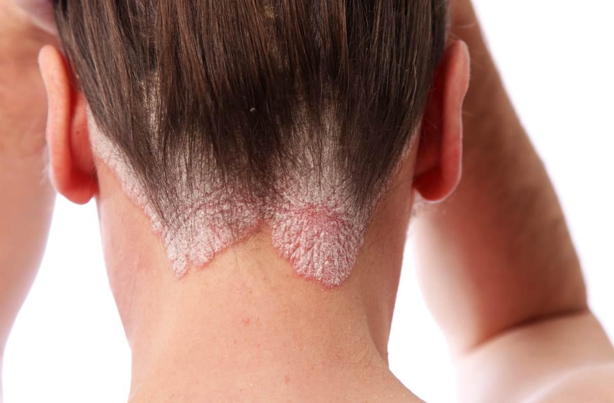 Псориаз чем убрать бляшки — Все заболевания кожи