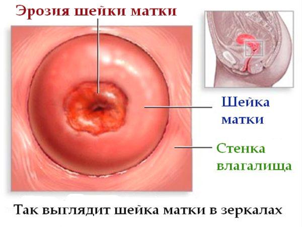 biopsiya-sheiki-matki-pokazaniya