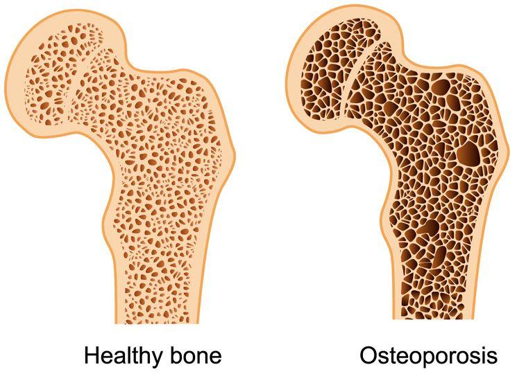 sravneniye-zdorovyye-kosti-i-osteoporoz