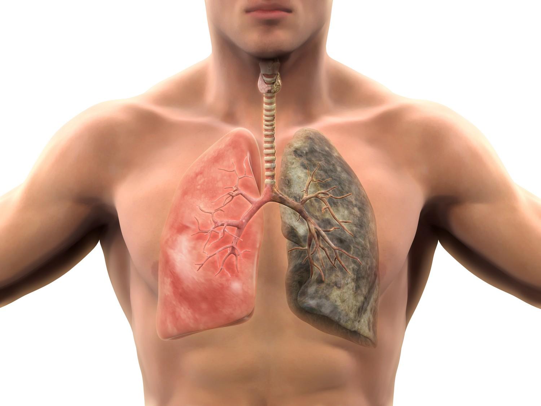 Профилактика и ранняя диагностика рака легких
