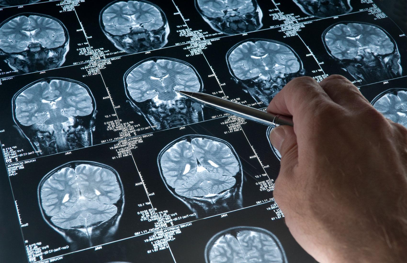 Что такое МРТ головы