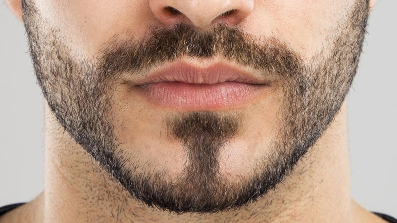 Почему плохо и медленно растет борода, фото 3