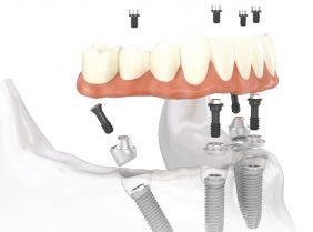 Как вернуть утраченные зубы всего за один день