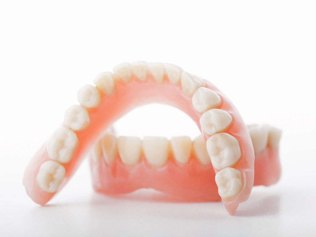 имплантация или мост зубов