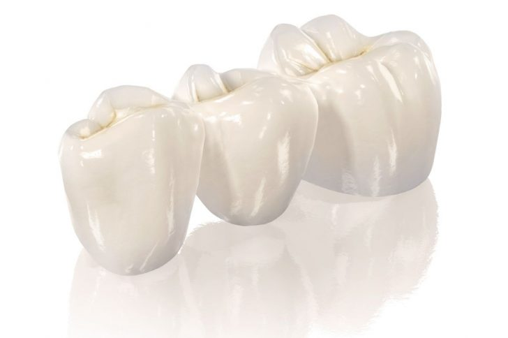 Здоровье зубов: цирконий в стоматологии