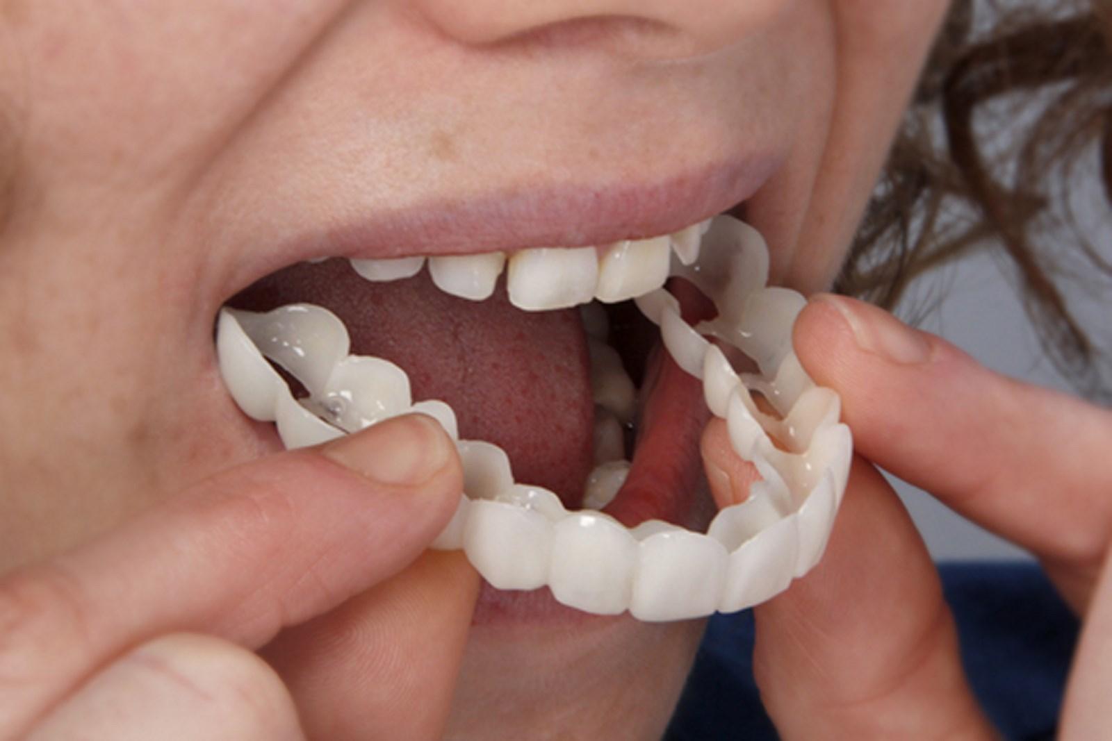 Имплантация зубов или мост, что лучше выбрать