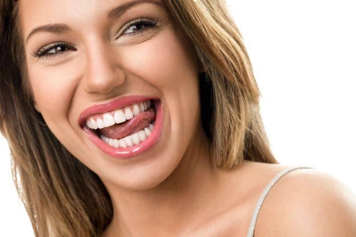 Виниры на зубы, установка