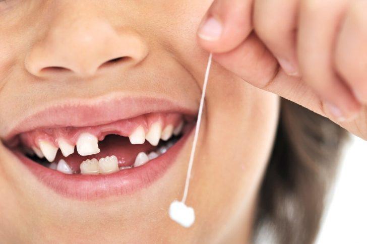 Кариес молочных зубов: почему возникает и что делать