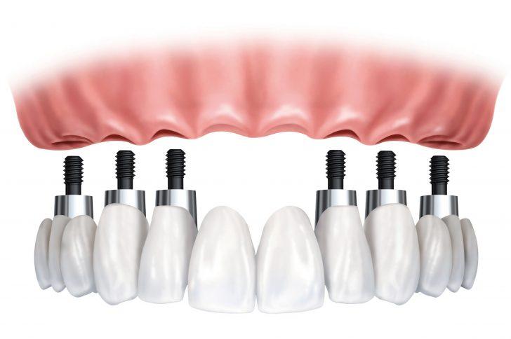 Как установить верхние зубные имплантаты, если кость слишком узкая?