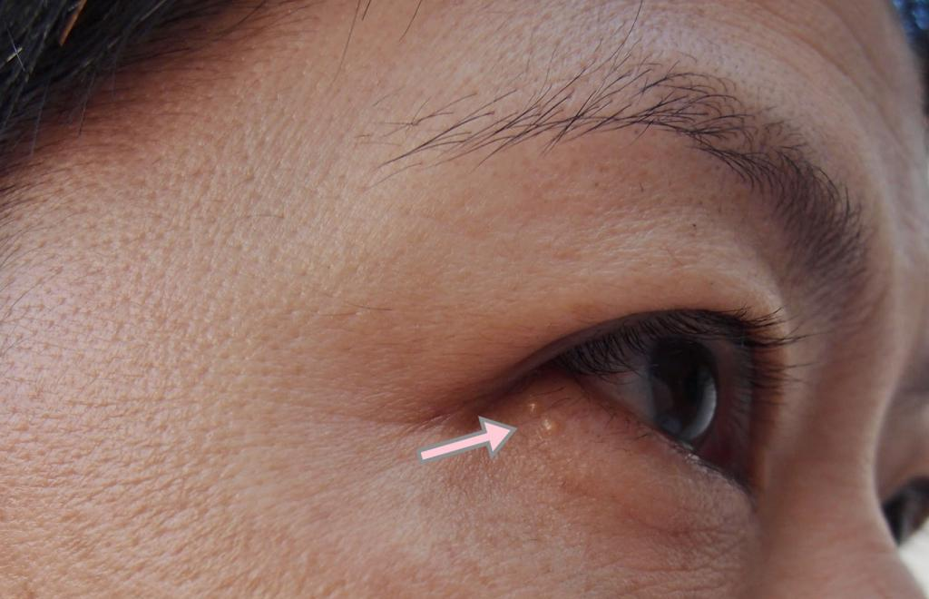 На веках глаз лечение