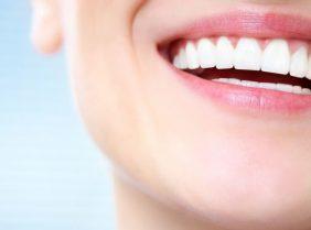 Красивая улыбка без желтых зубов